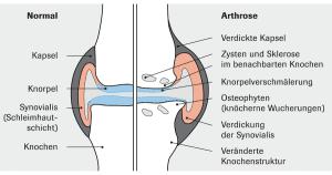 Arthrose und wie Qi Gong helfen kann